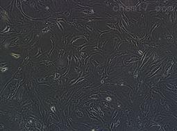人视网膜muller细胞
