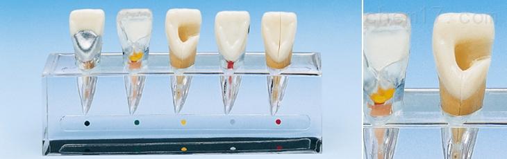 牙髓病临床模型A 牙医教学