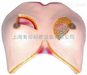 乳房解剖模型|妇产胎儿技能训练模型