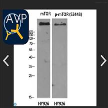 STJ94280Anti-mTOR antibody