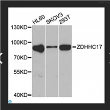 STJ28876Anti-ZDHHC17 Antibody