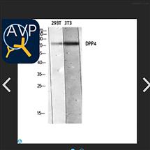 Anti-CD26 antibody--STJ97660