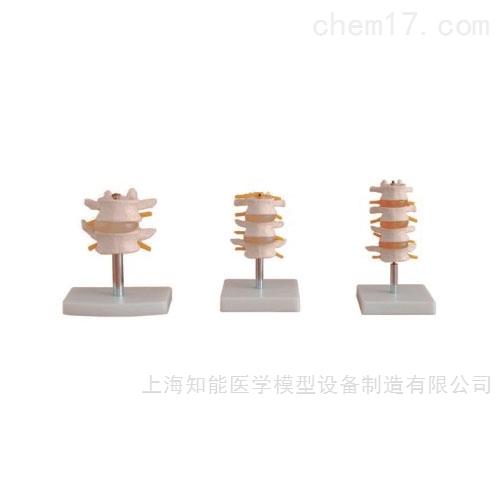 人体腰椎组合模型
