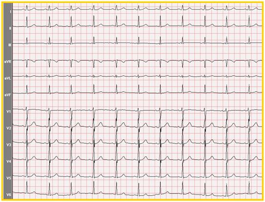 看这张正常的心电图,每一次心跳的心电图间距大小是相等的,波形是
