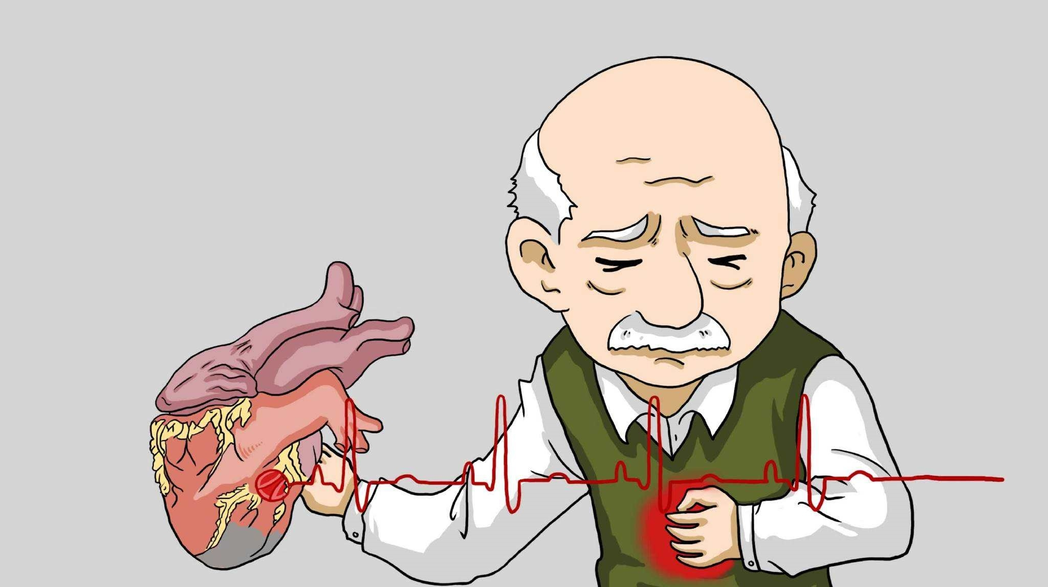 突发心绞痛如何进行急救?