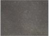 U-251脑星形胶质瘤